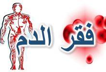 فقر الدم الناتج عن نقص الحديد