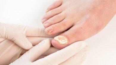 فطريات الأظافر لدى مرضى السكري