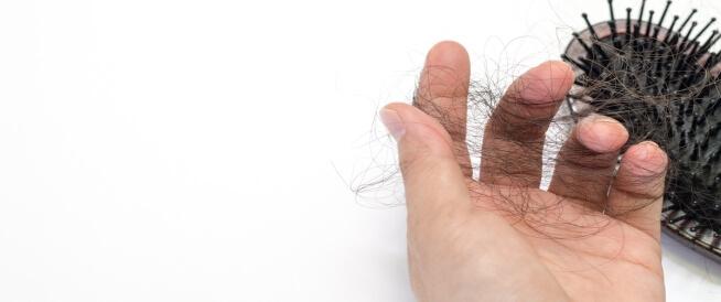طرق لعلاج تساقط الشعر بسبب الذئبة الحمراء